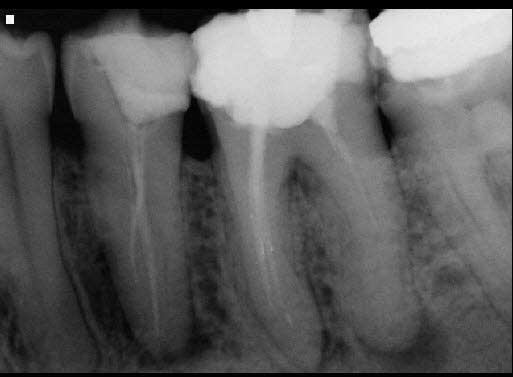 Acute Apical Periodontitis Dx: acute apical periodontitis