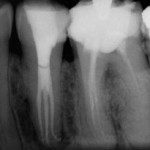 Advanced Endodontics Case of the Day 4